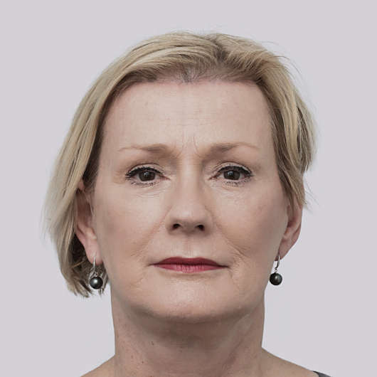 Dr Ha Facelift Before & After - Adelaide