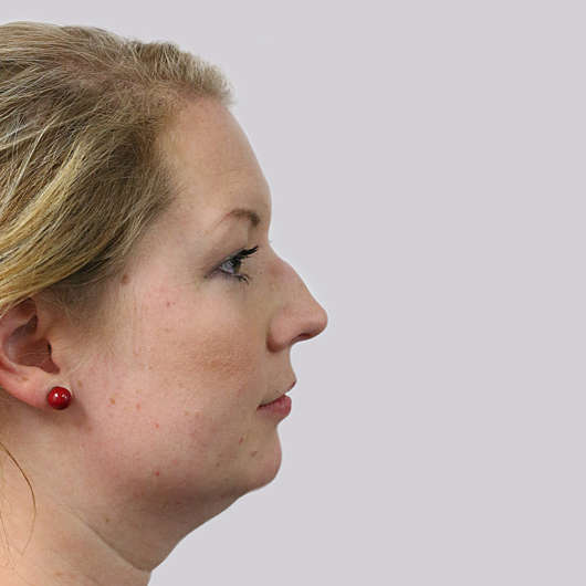 Dr Ha Rhinoplasty Before & After (Female) - Adelaide