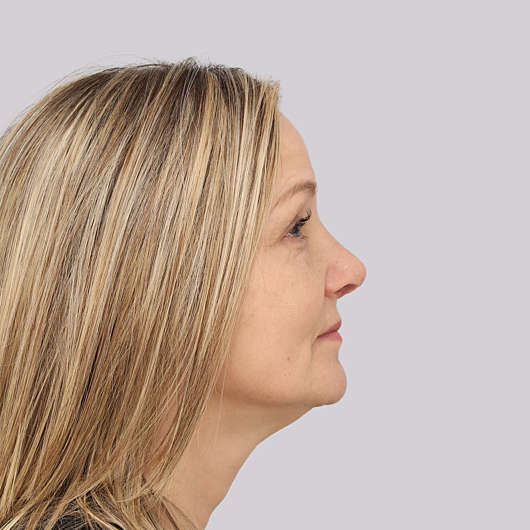 Dr Ha Rhinoplasty Before & After - Adelaide