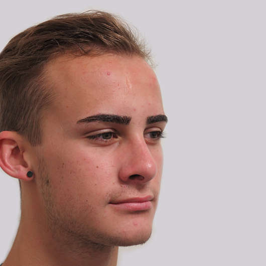 Dr Ha Rhinoplasty Before & After (Male) - Adelaide
