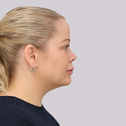 Dr Ha Revision Rhinoplasty Before & After - Adelaide
